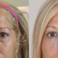 Hyaluronic acid for treatment of tear trough deformity
